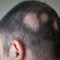 What Should You Know About Alopecia And Hair Loss
